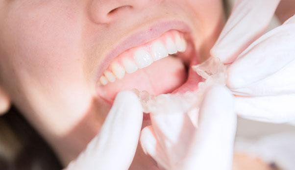 Følsomme tandhalse